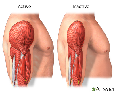 muscle atrophy, Muscles