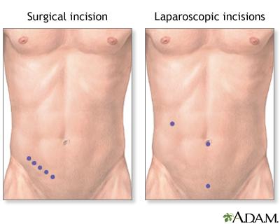 appendectomy, Cephalic Vein