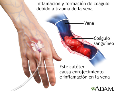 Los dolores de los pies varikoz