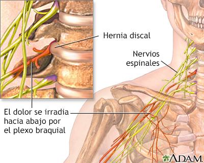 Sheynyy la osteocondrosis la infracción de la respiración
